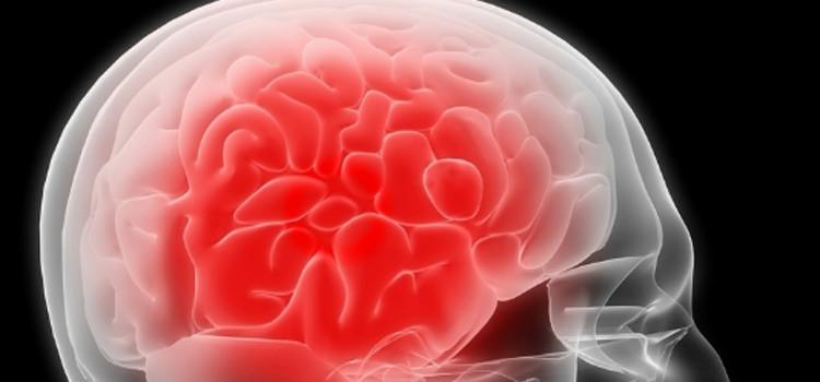 Meningite: cause, sintomi e consigli preventivi