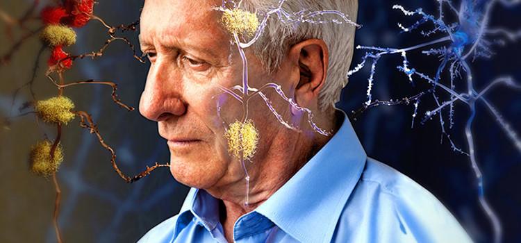 Alzheimer: la scoperta dell'origine del morbo